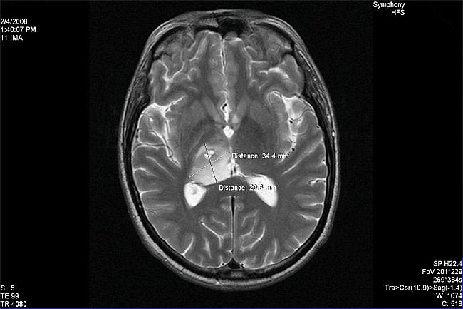 Case4-image1